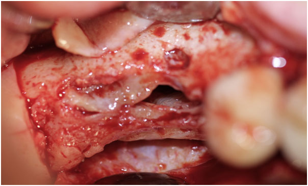 pictures-of-oral-antral-fistula