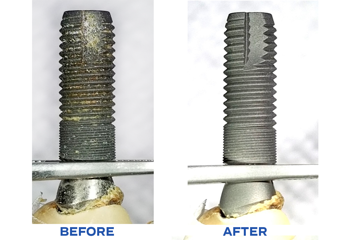 failed implant with retained cement cleaned with βTCP air abrasion