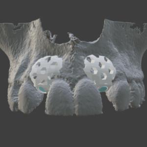 3D-Printed Tissue Regeneration