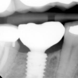 Early Implants: Pushing the Envelope on Bone Regeneration